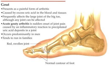 gout-chart